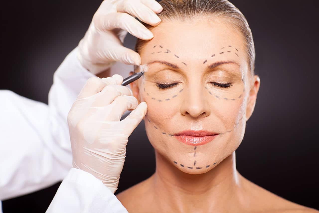ritidoplastia-rosto-1