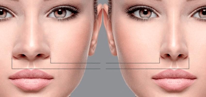 harmonização-facial-4